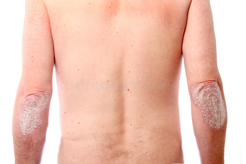 Download Psoriasis on both elbows stock image. Image of elbow - 12173675