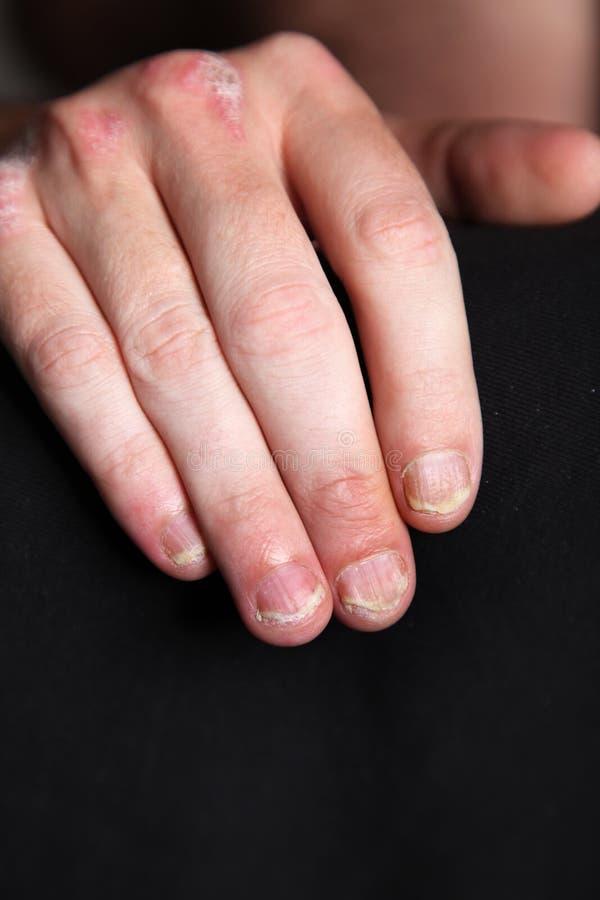 Psoriasis der Fingernägel u.hand stockbild