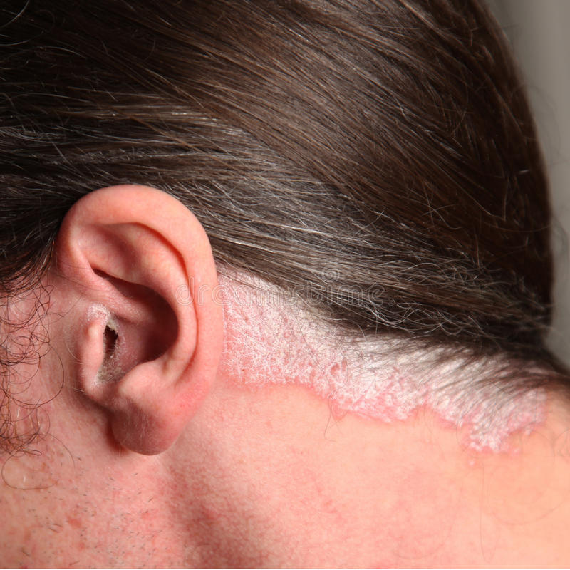 Psoriasis in the ear and neck