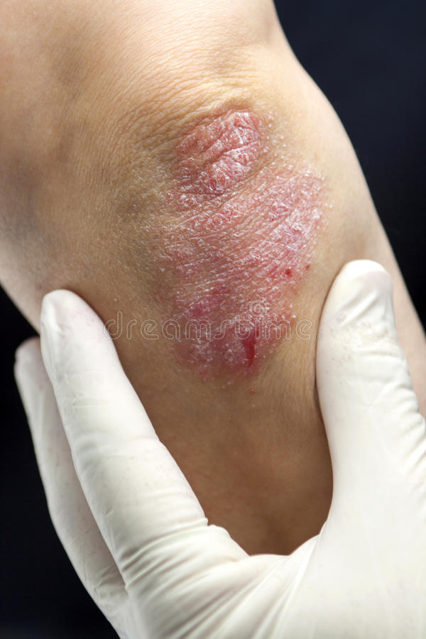 Psoriasis on elbows stock images