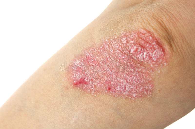 Psoriasis royalty free stock image