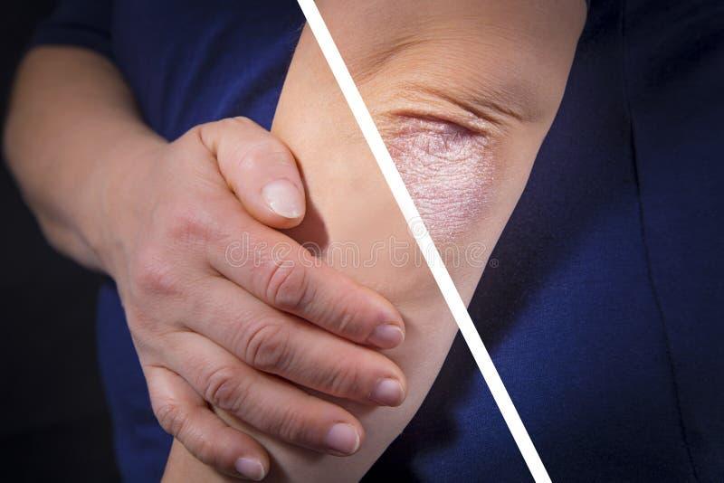 Psoriasis en codo antes y después imagen de archivo