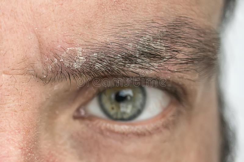 Psoriasis on the eyebrow close up, dermatological diseases, skin problems stock photos