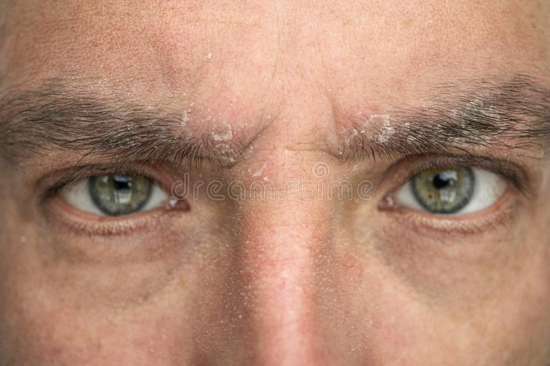 Psoriasis on the eyebrow close up, dermatological diseases, skin problems stock image