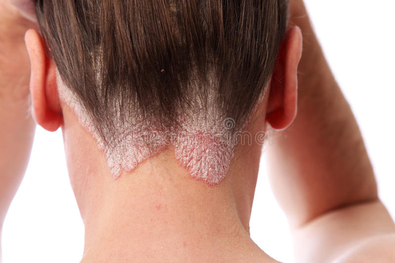 Psoriasis on the hairline and on the scalp stock photo