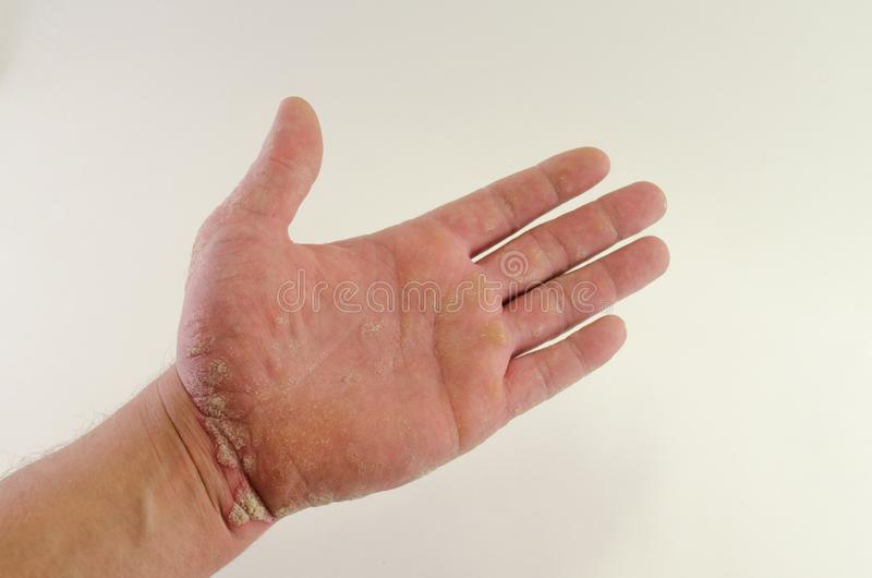 Exacerbation of psoriasis in the hands stock images