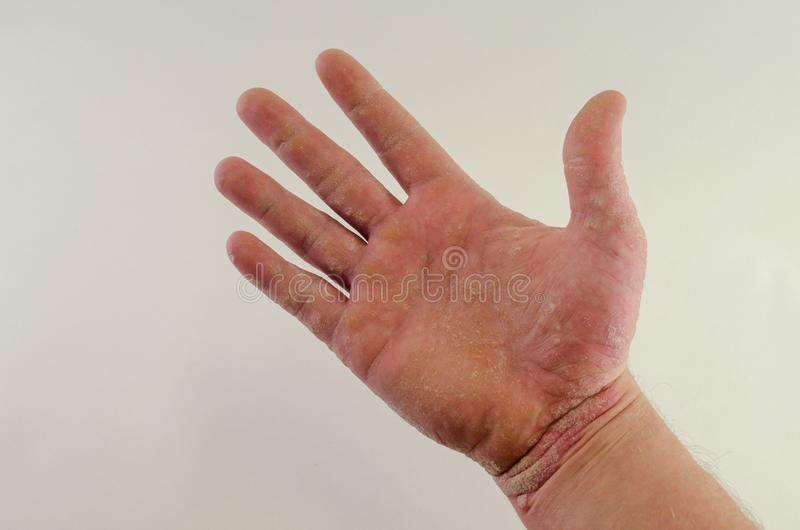Exacerbation of psoriasis in the hands royalty free stock image
