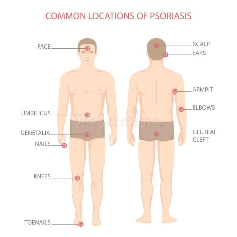 Psoriasis illness diagram. Human body skin disease stock illustration