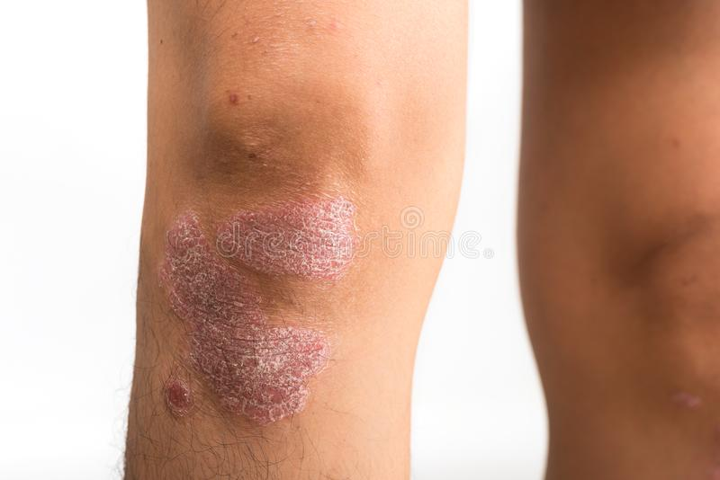 Psoriasis that knee stock photography