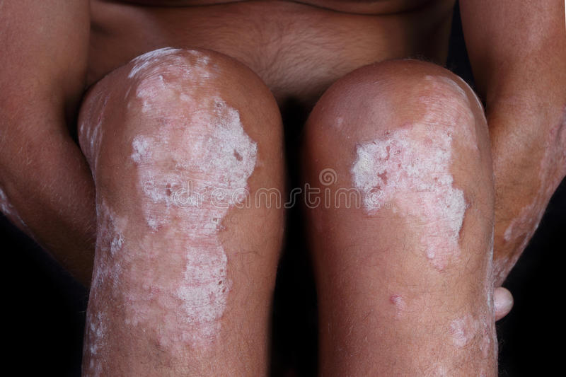 Psoriasis royalty free stock photo