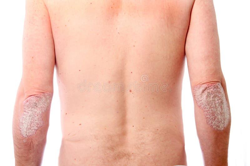 Psoriasis op beide ellebogen royalty-vrije stock foto