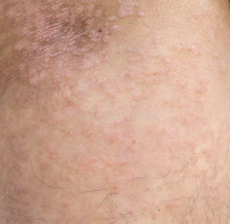 Psoriasis op de huid stock foto