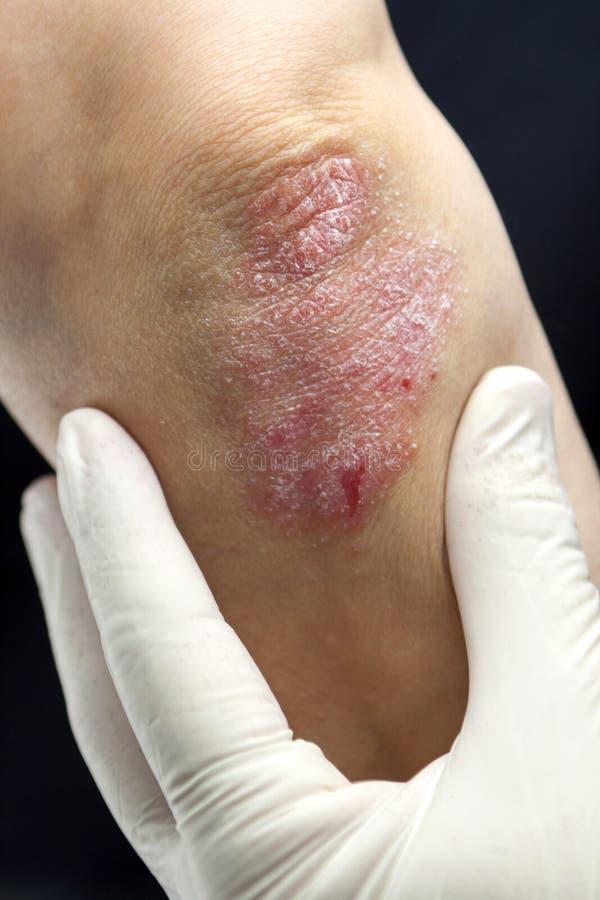 Psoriasis på armbågar arkivbilder