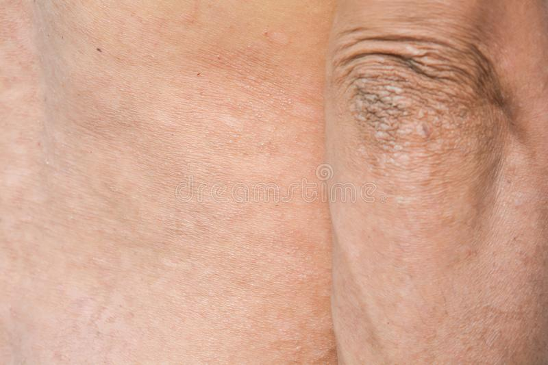 Psoriasis on the skin. Contagious Diseases and Chronic Diseases royalty free stock photography