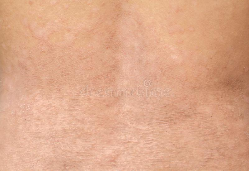 Psoriasis sur la peau image libre de droits