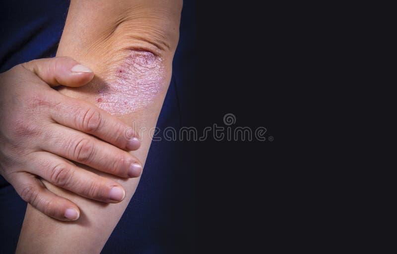 Psoriasis sur le coude photo libre de droits