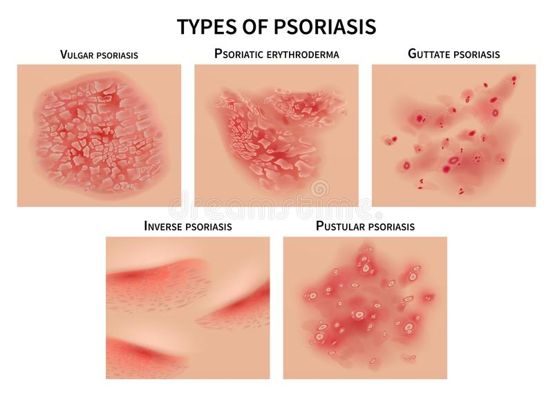 Psoriasis types. Skin hives, derma diseases. Closeup medical vector illustration vector illustration