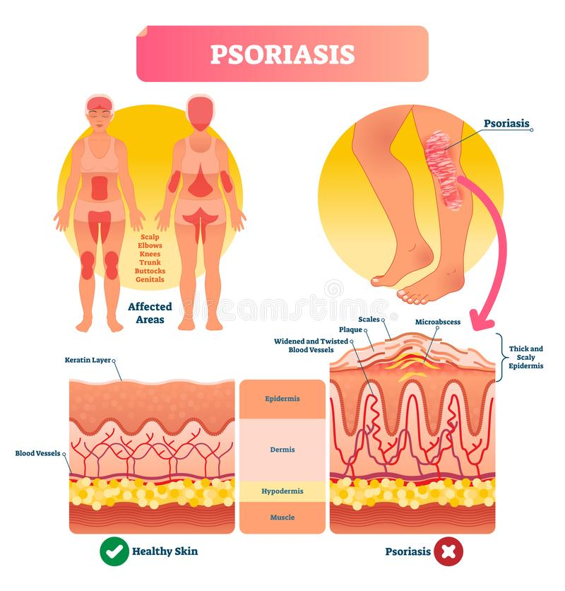 Psoriasis vector illustration. Skin disease and illness. Labeled structure. vector illustration
