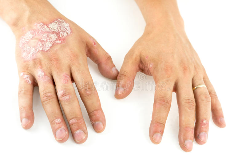 Psoriasis vulgaris on the mans hands with plaque, rash and patches, isolated on white background. Autoimmune genetic disease. Psoriasis vulgaris on the mans stock photography