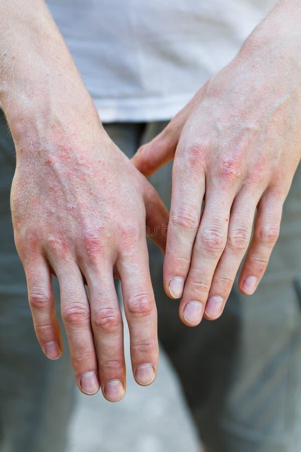 locoid pikkelysömör kezelésére új gyógymód a pikkelysömörhöz