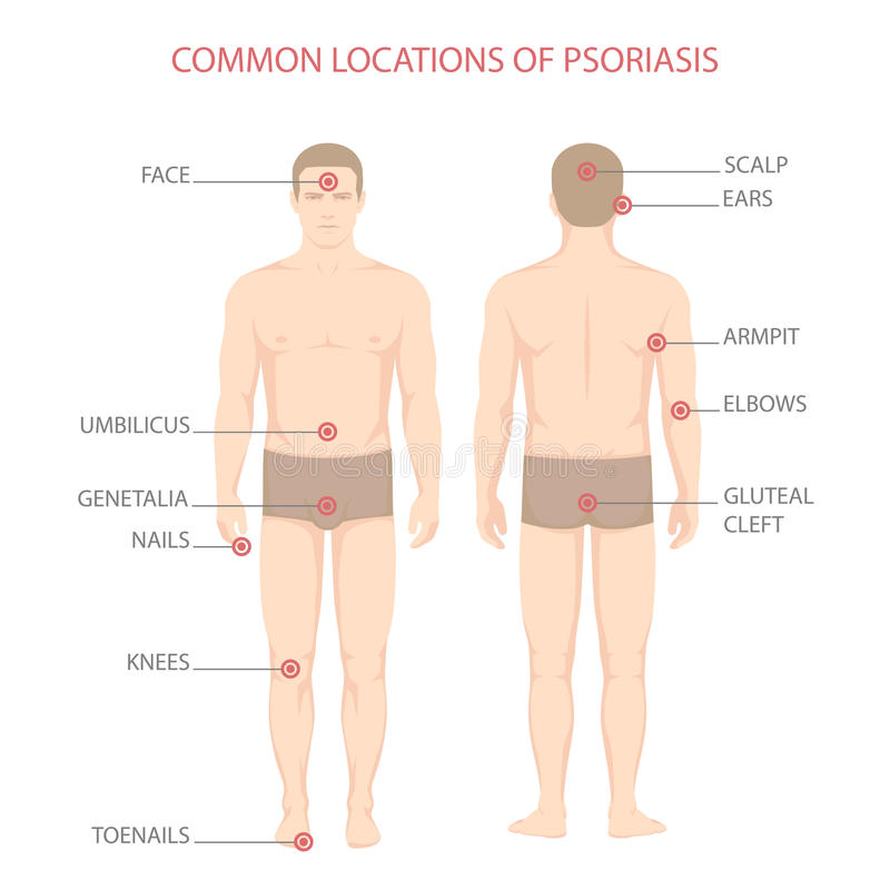 Psoriasissjukdomdiagram stock illustrationer