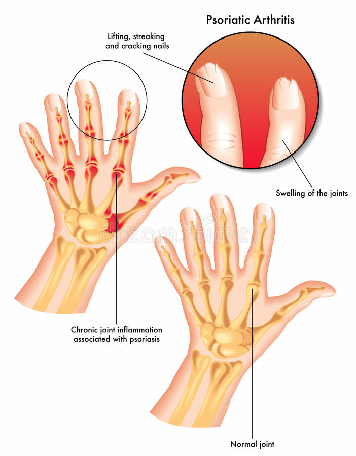 Psoriatic artrit stock illustrationer