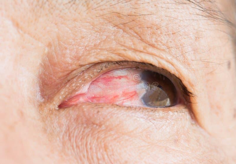 Pterigio dell'occhio in donne anziane fotografia stock libera da diritti