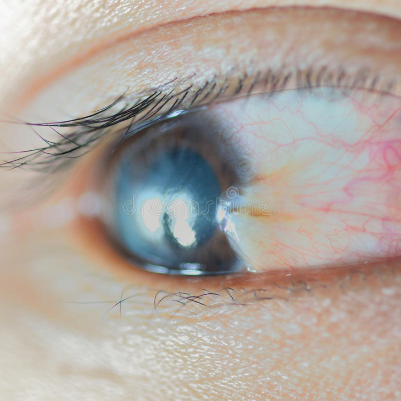 Pterygium images stock