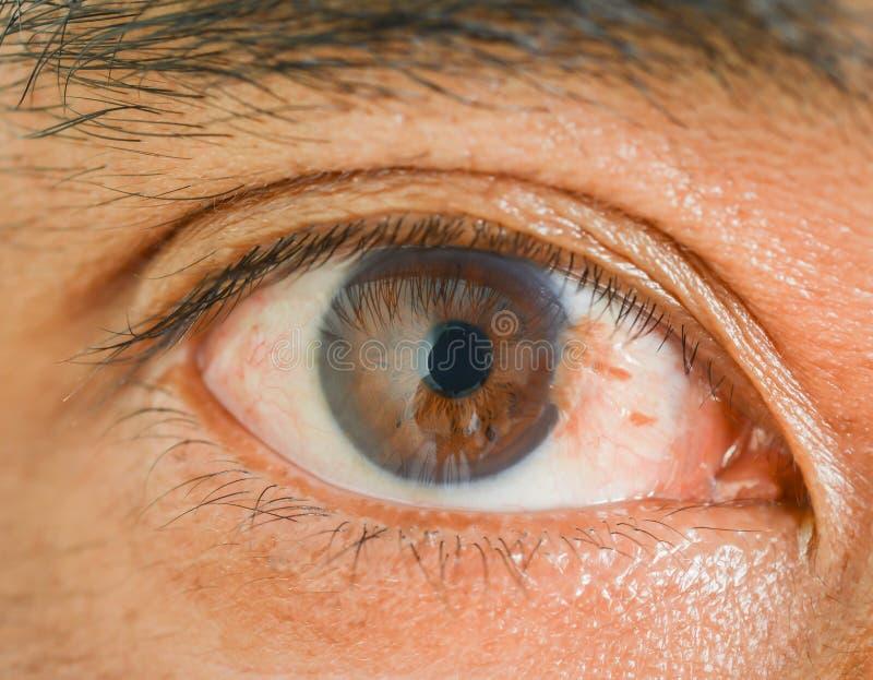 Pterygium d'oeil chez l'homme images stock