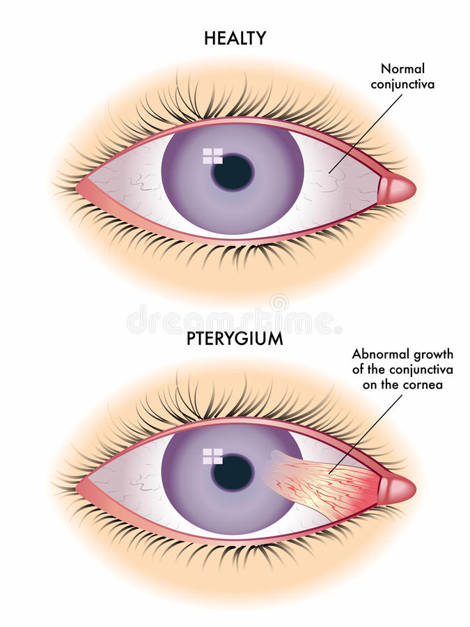 Pterygium. Medical illustration of the symptoms of pterygium vector illustration