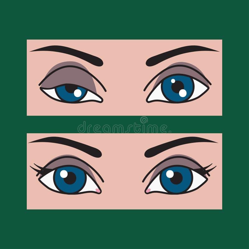 Ptosi, asimmetria degli occhi illustrazione di stock