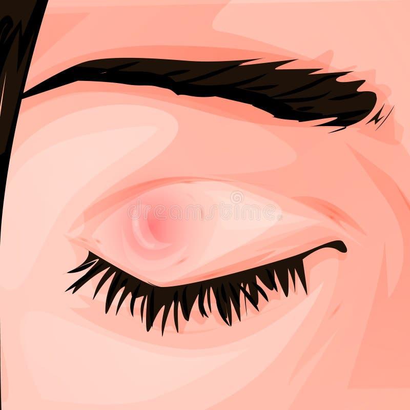 Pukkel op het oog bindvliesontsteking Roodheid en ontsteking van het oog Schepen in het oog Voor Infographics, plaatsen, affiches vector illustratie