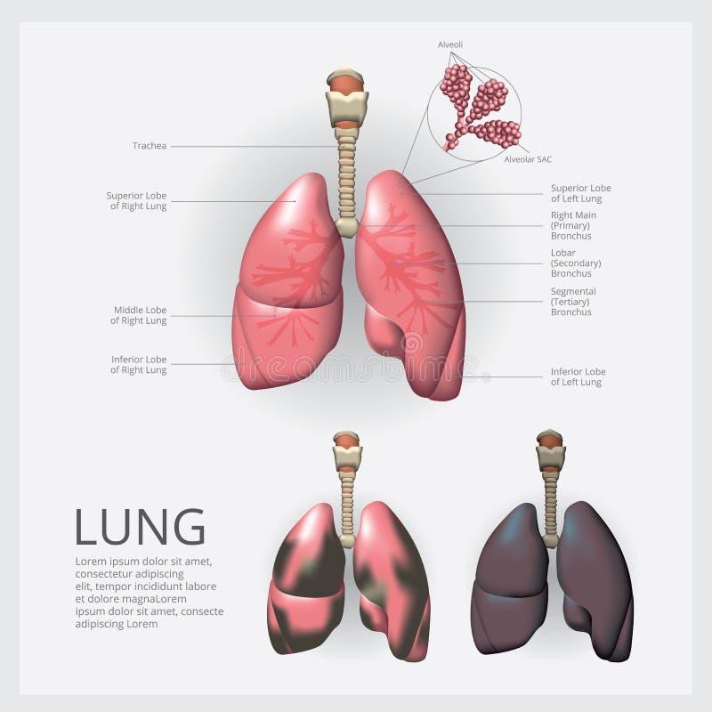 Pulmão com detalhe e Lung Cancer ilustração stock