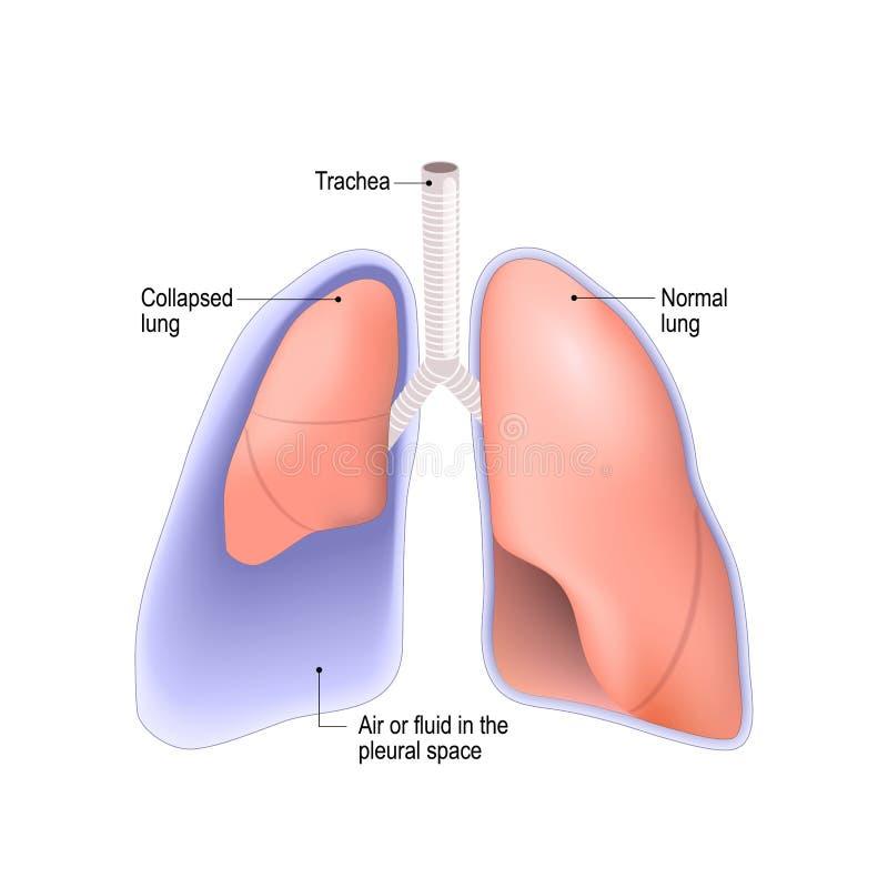 Pulmão desmoronado pneumothorax, ou efusão pleural, ilustração royalty free