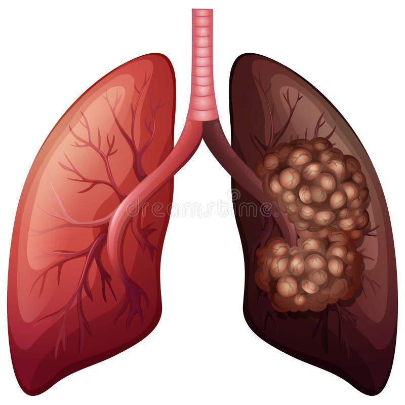Pulmão e câncer pulmonar normais ilustração stock