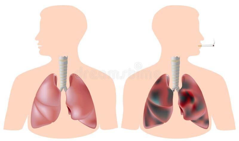 Pulmón del fumador (con el tumor) contra el pulmón sano ilustración del vector