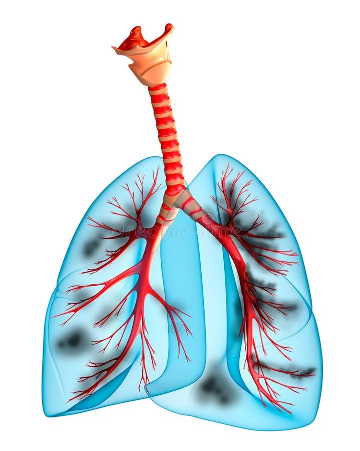 Pulmões doentes ilustração do vetor