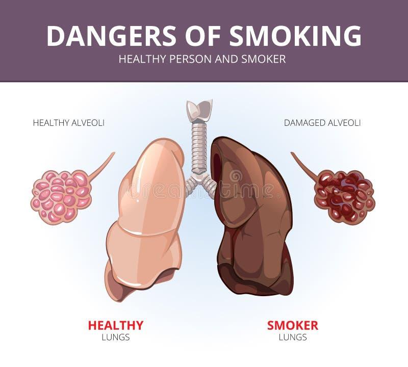 Pulmões e alvéolos de um fumador saudável da pessoa ilustração stock
