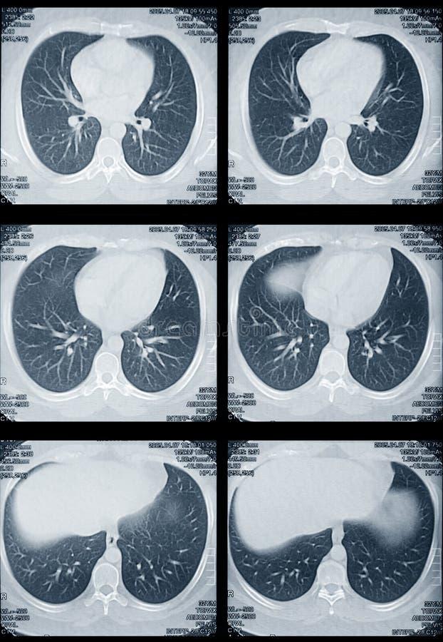 Pulmões e tomography do coração fotografia de stock