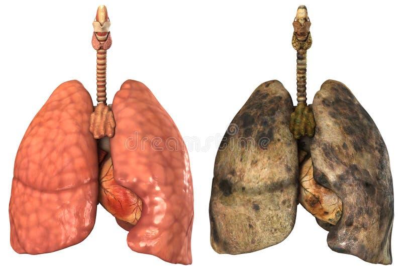 Pulmões humanos saudáveis e doentes