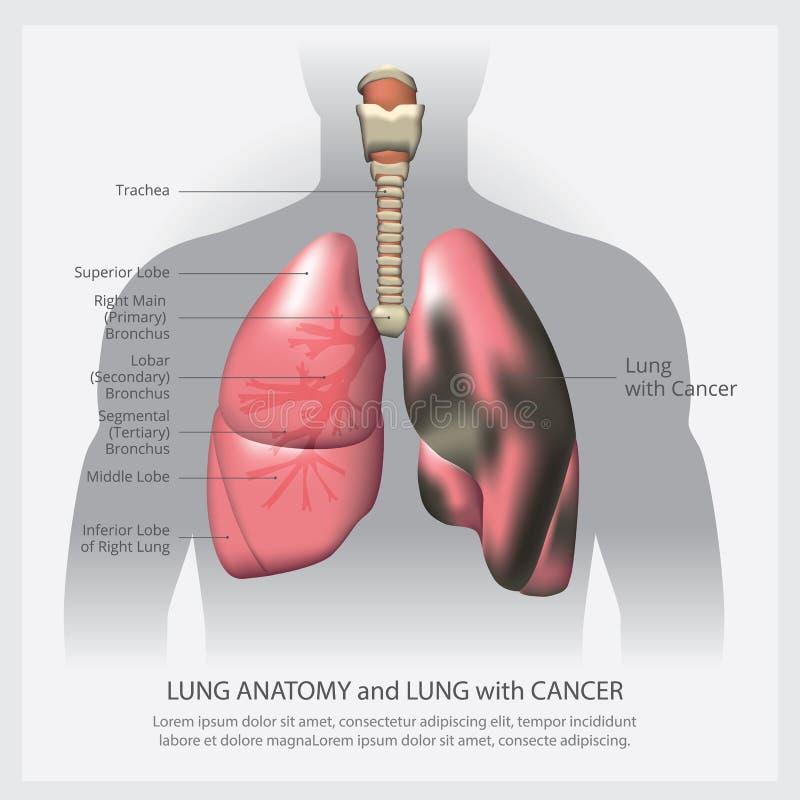 Pulm?o com detalhe e Lung Cancer ilustração stock