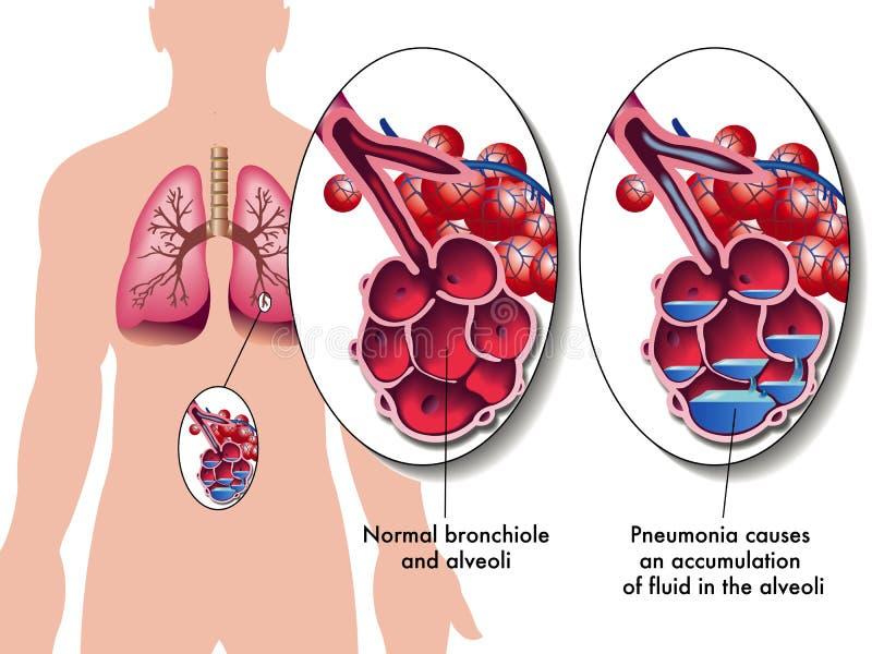 Pulmonía stock de ilustración