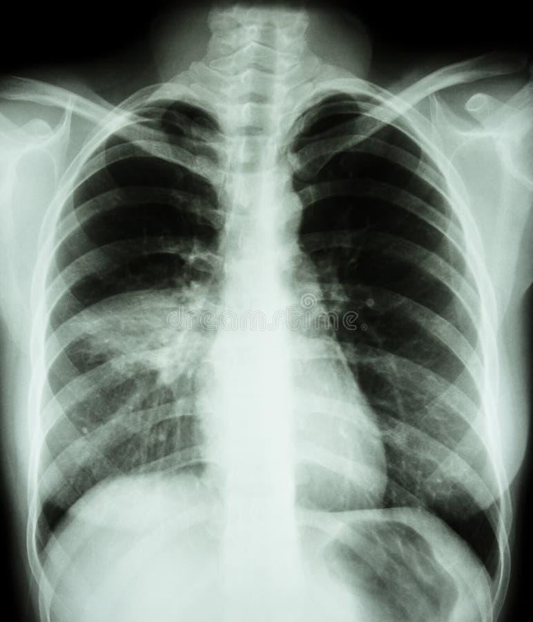 pulmonía fotografía de archivo libre de regalías