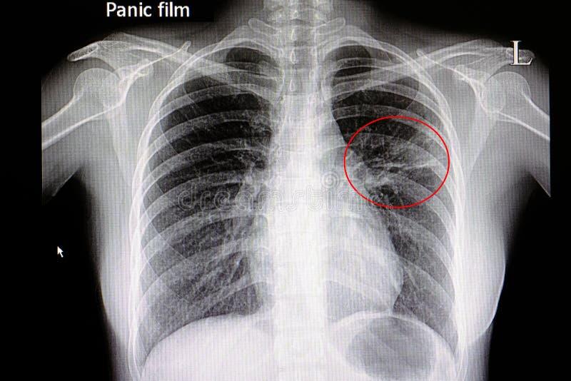 pulmonía imagen de archivo