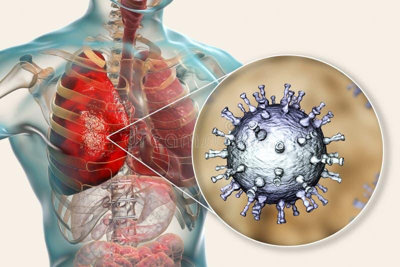 Pulmonía del virus del zoster de la varicela, complicación de la varicela stock de ilustración