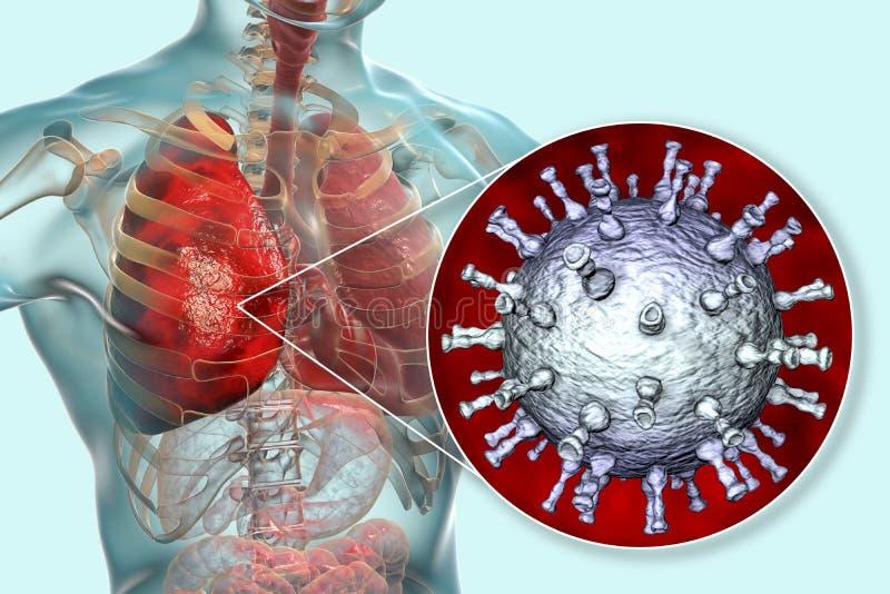 Pulmonía del virus del zoster de la varicela, complicación de la varicela ilustración del vector