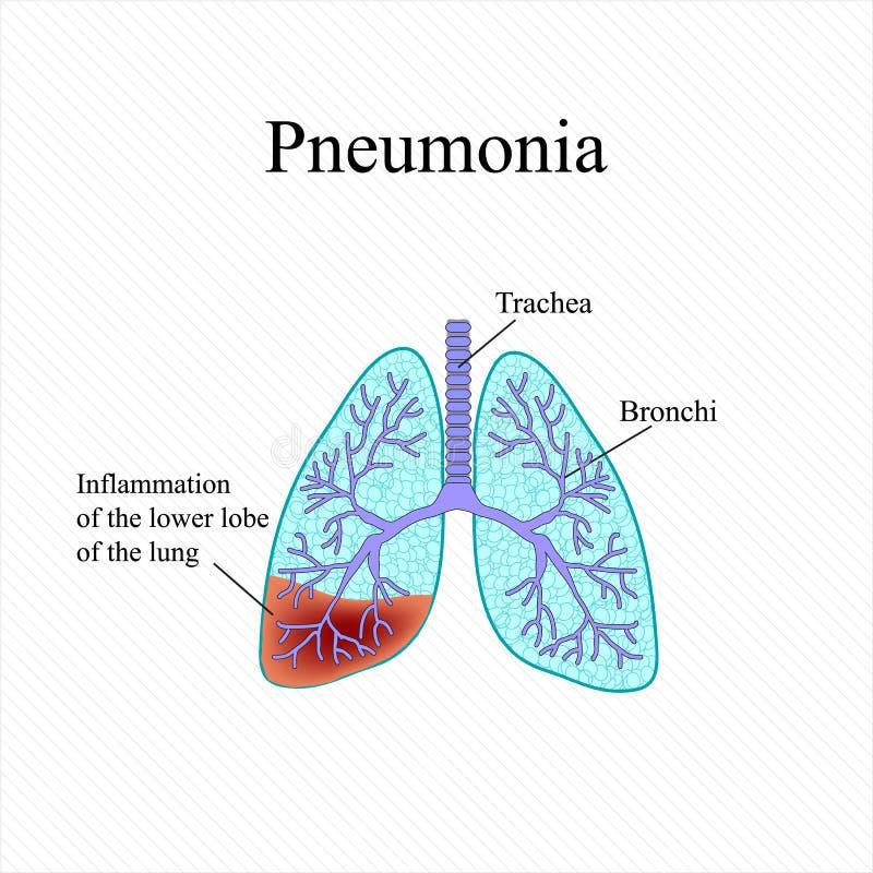 pulmonía La estructura anatómica del pulmón humano Inflamación del lóbulo más bajo del pulmón Ilustración del vector libre illustration