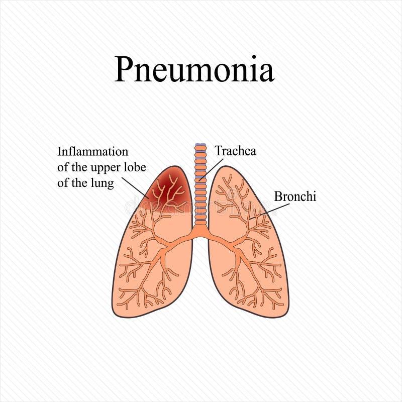 pulmonía La estructura anatómica del pulmón humano Inflamación del lóbulo superior del pulmón Ilustración del vector ilustración del vector