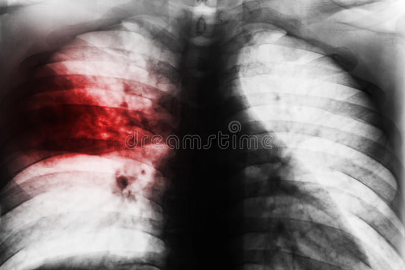 Pulmonía lobular fotografía de archivo
