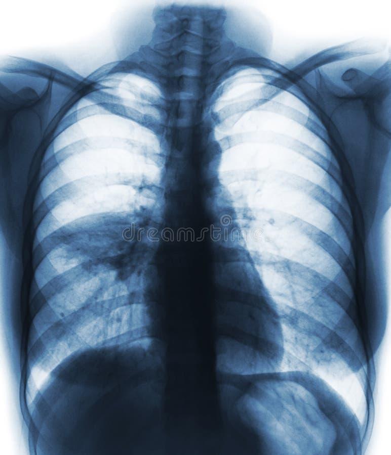 Pulmonía y x28; el alveolar de la demostración de la radiografía del pecho de la película infiltra en el pulmón medio derecho y x imagen de archivo